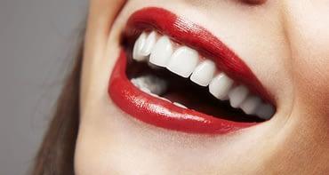 Alpstein Kosmetik Zahnbleiche